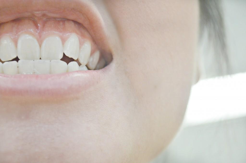 Dents de sagesse Douleurs