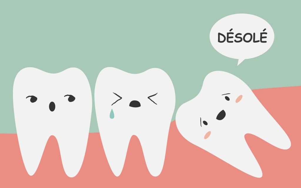 Tous les symptômes des dents de sagesse